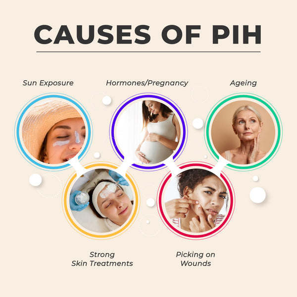 This is an image of Causes of PIH on www.sublimelife.in