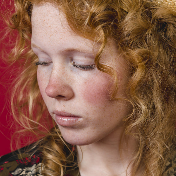 This is an image for What is Rosacea on www.sublimelife.in