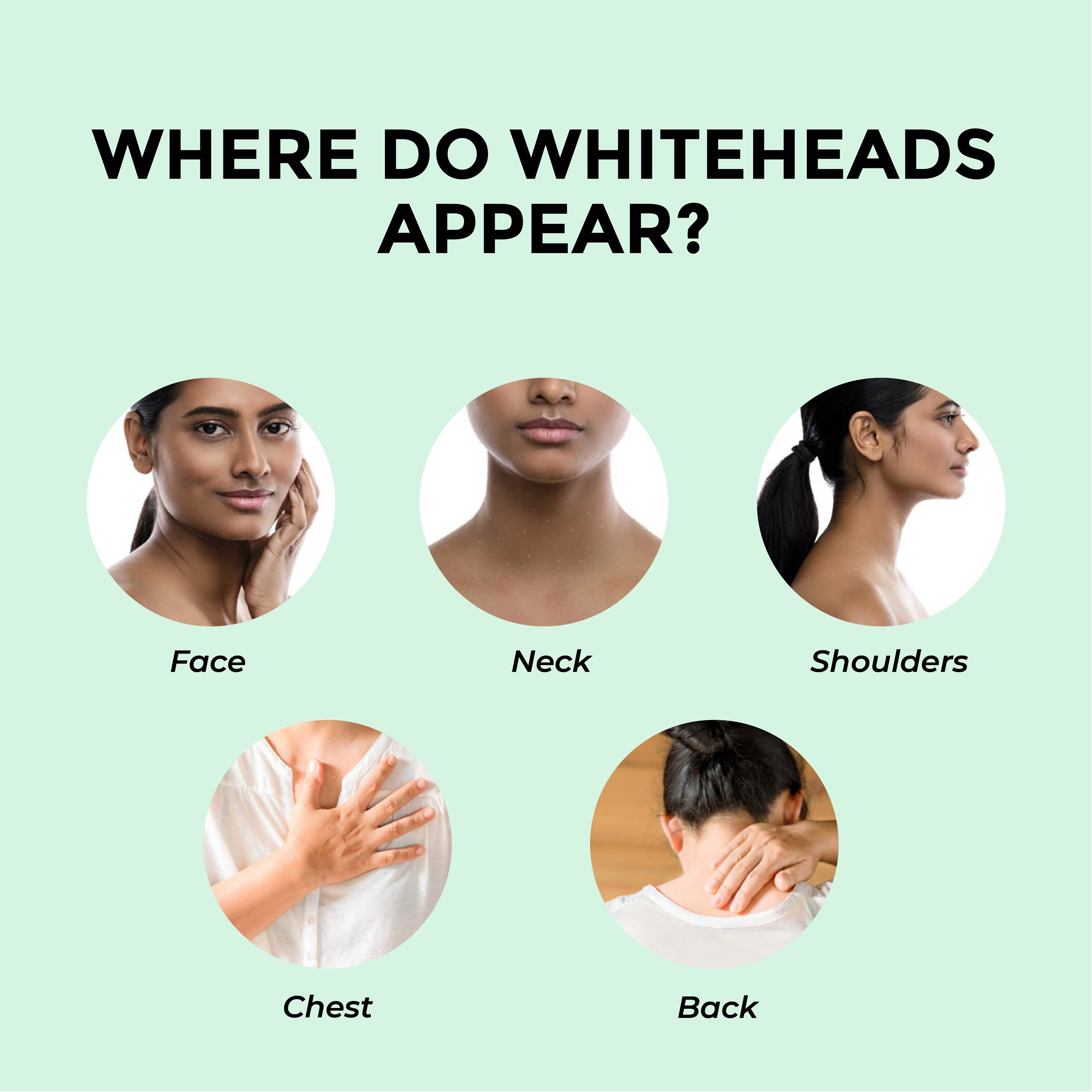This is an image of where do whiteheads appear on www.sublimelife.in