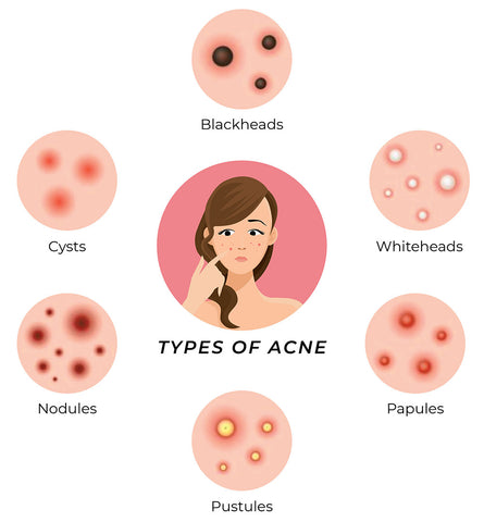 This is an image showing different types of acne prone to oily skin