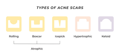 This is an infographics showing different types of acne scars
