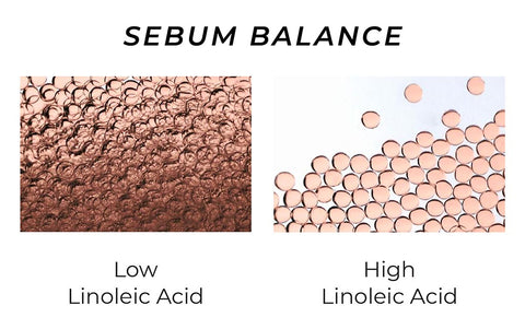 This is an image of consistency of Linoleic acid in Sebum of face.