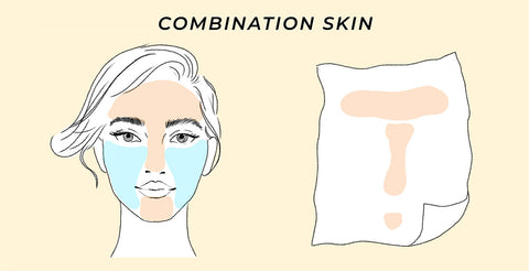 This is the skin test result for combination skin