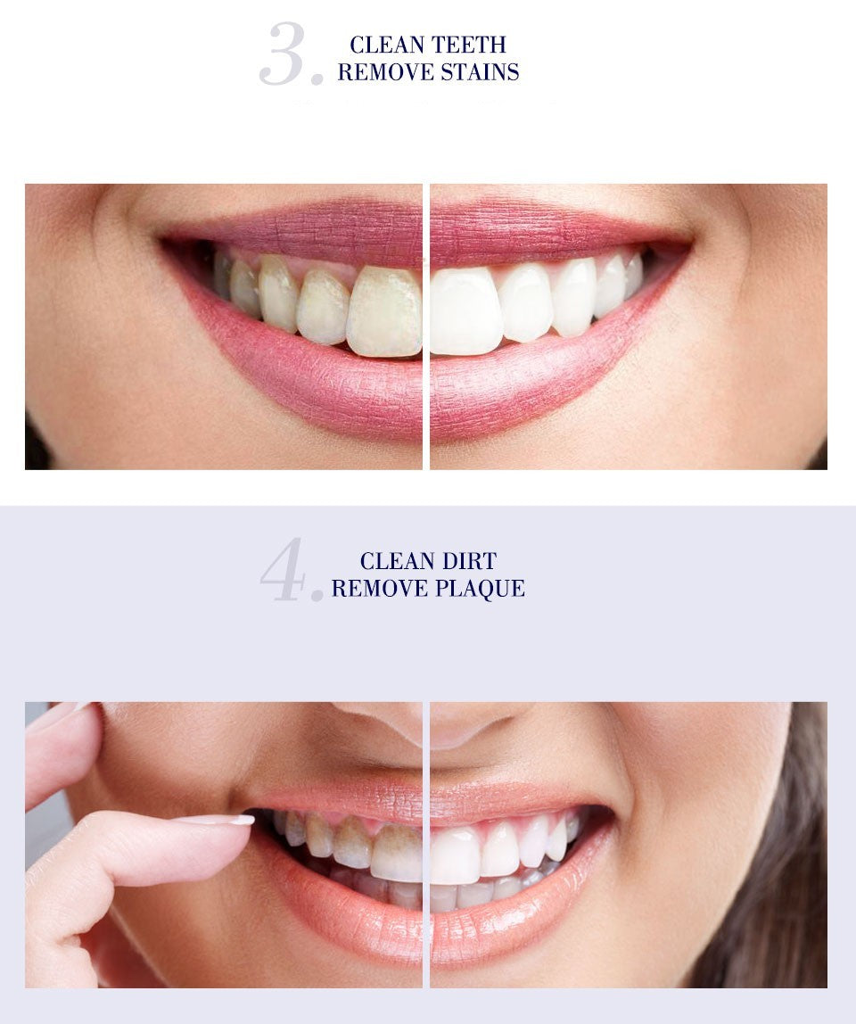 2019 best teeth whitening kits