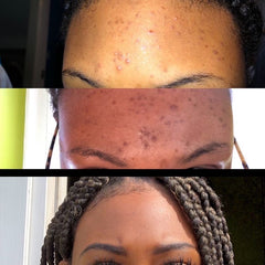 Before and After Acne & Hyperpigmentation