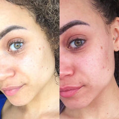 Before and After Rosacea