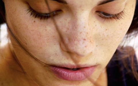 Dark spot removal methods used by women the world over