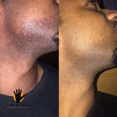 Before and After Ingrown Hairs