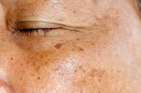 Treatment Options for Hyperpigmentation