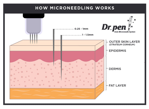 wound healing response by microneedling pen illustration