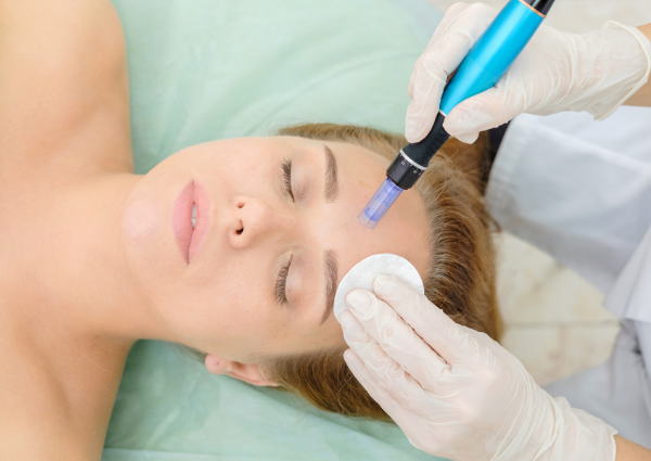 Woman laying down having her forehead microneedled with the Dr Pen A1-W microneedling pen