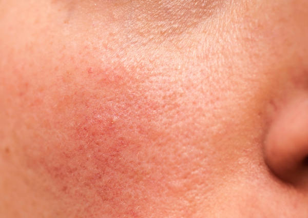 A person with rosacea on their cheek