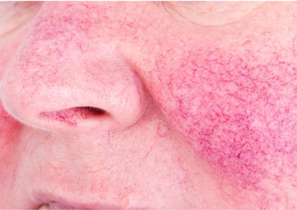A person with redness, visible veins and rosacea on their skin