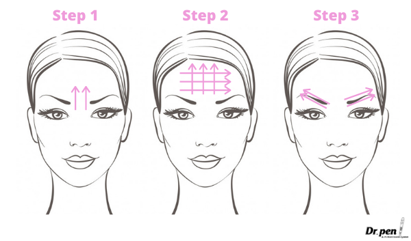 Dr Pen Face Mapping Microneedling Guide 1