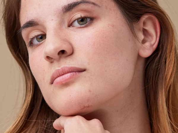 Woman's clean makeup free face with small acne scars
