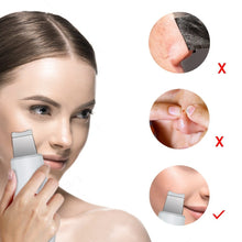 Load image into Gallery viewer, Ultrasound 3-In-1 Facial Scrubber