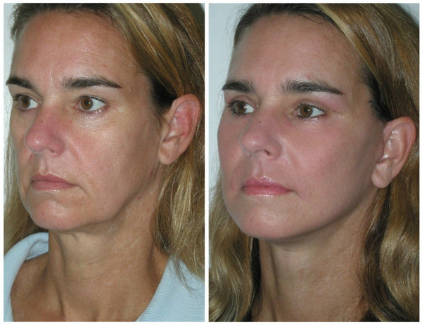 Kliniek DOKTER_ROBERT - Draadlift PDO-threadlift Before After