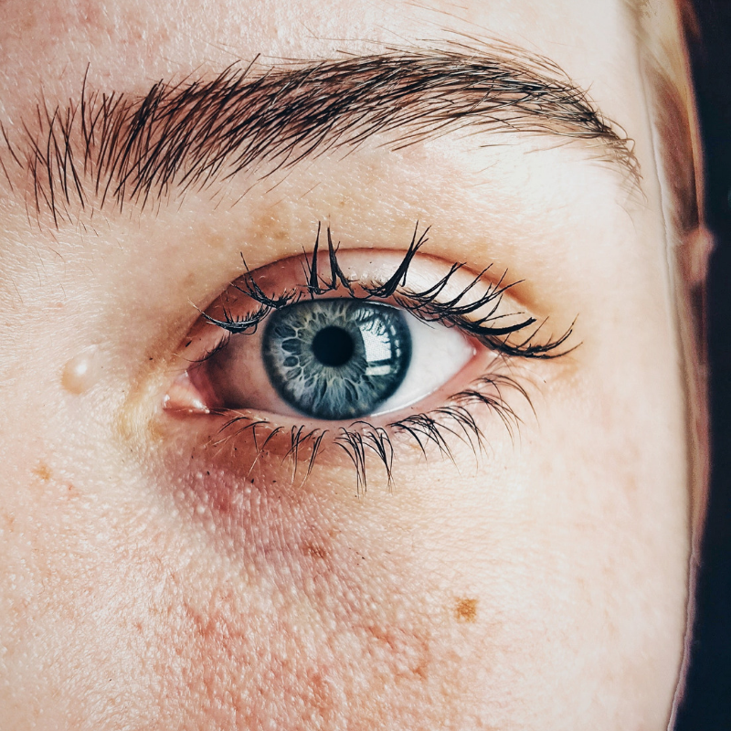 How to Naturally Get Rid of Dark Circles Under the Eyes