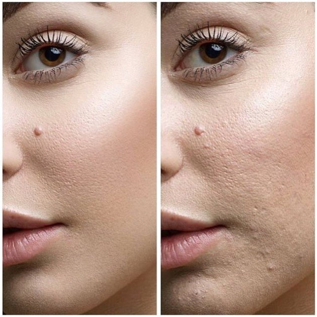 Skin Retouching Done Right Notes