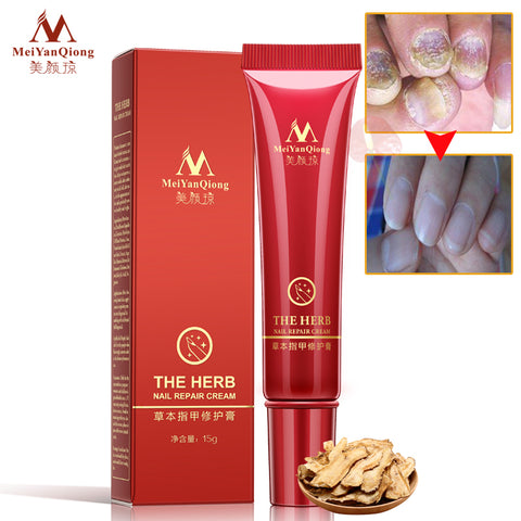 MeiYanQiong - The Herb Nail Repair Cream (2 Pack)