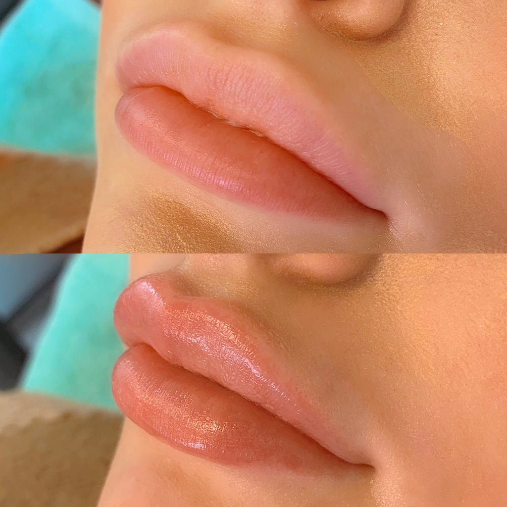 Artboard 61 1024x1024 - How Often Do You Have To Get Your Lips Refilled
