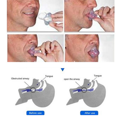 putting a snoring mouthpiece in