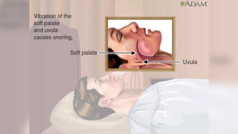 snoring diagram on how it is caused