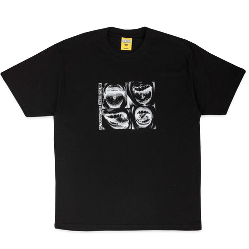 POLAR X IGGY – ALTERNATIVE YOUTH TEE (BLACK)