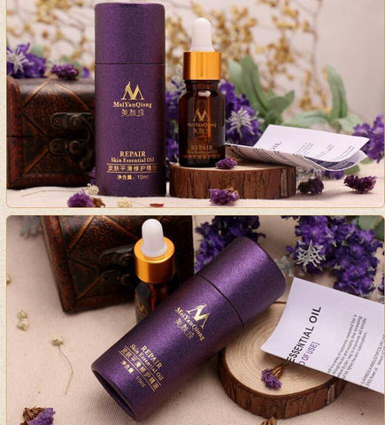 Image of Lavender Essential Oil Skin Treatment - The Trendy Hero