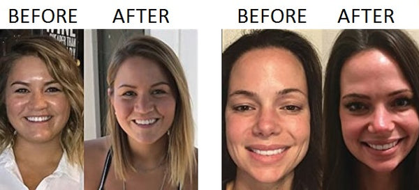 double chin exercises before and after