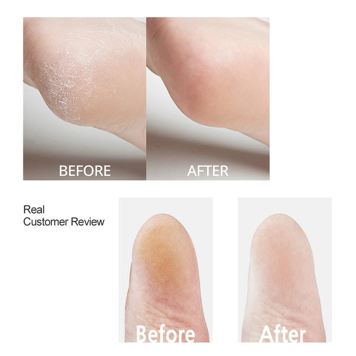 [Yourb] Heel Callus Remover Keratin Removal Foot Care Scraper