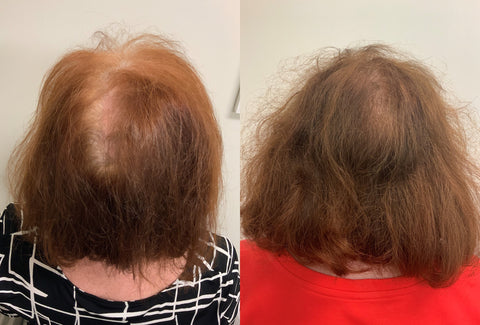 PRP scalp results