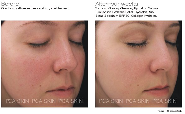 PCA Skin Dual Action Redness Relief 28g - Buy Online Now - dermoi! SHOP