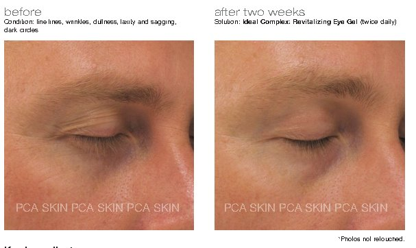 PCA Skin Ideal Complex Revitalizing Eye Gel 14.2g - Buy Online Now - dermoi! SHOP