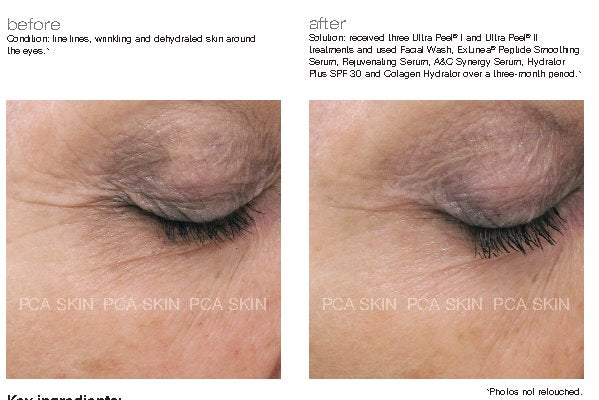 PCA Skin Rejuvenating Serum 29.5ml - Buy Online Now - dermoi! SHOP