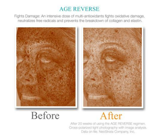 Exuviance Age Reverse Day Repair SPF30 50g - Buy Online Now - dermoi! SHOP
