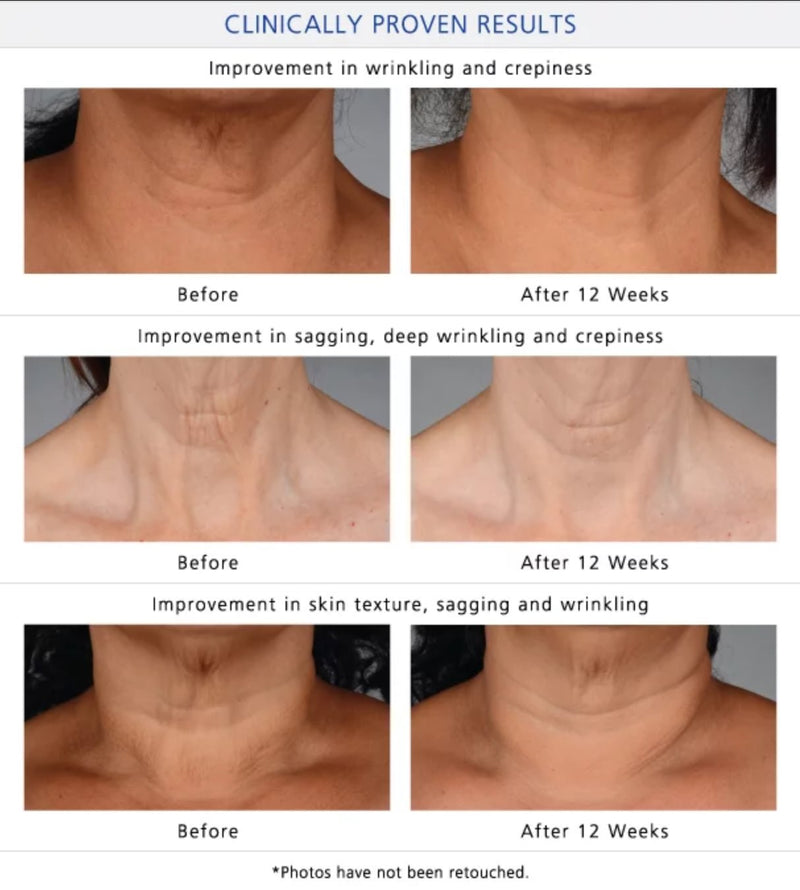 iS Clinical Neck Perfect Complex