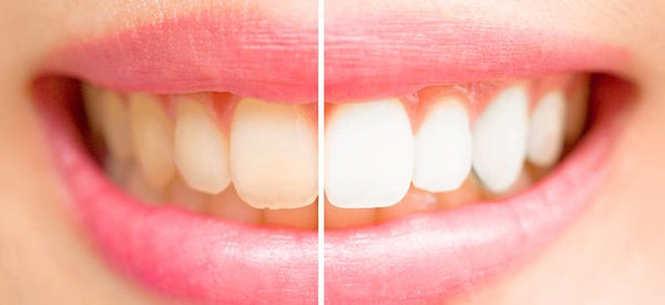 What Is Staining My Teeth?