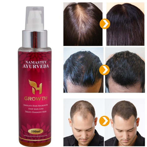 H-GROWTH Hair Regrowth Oil