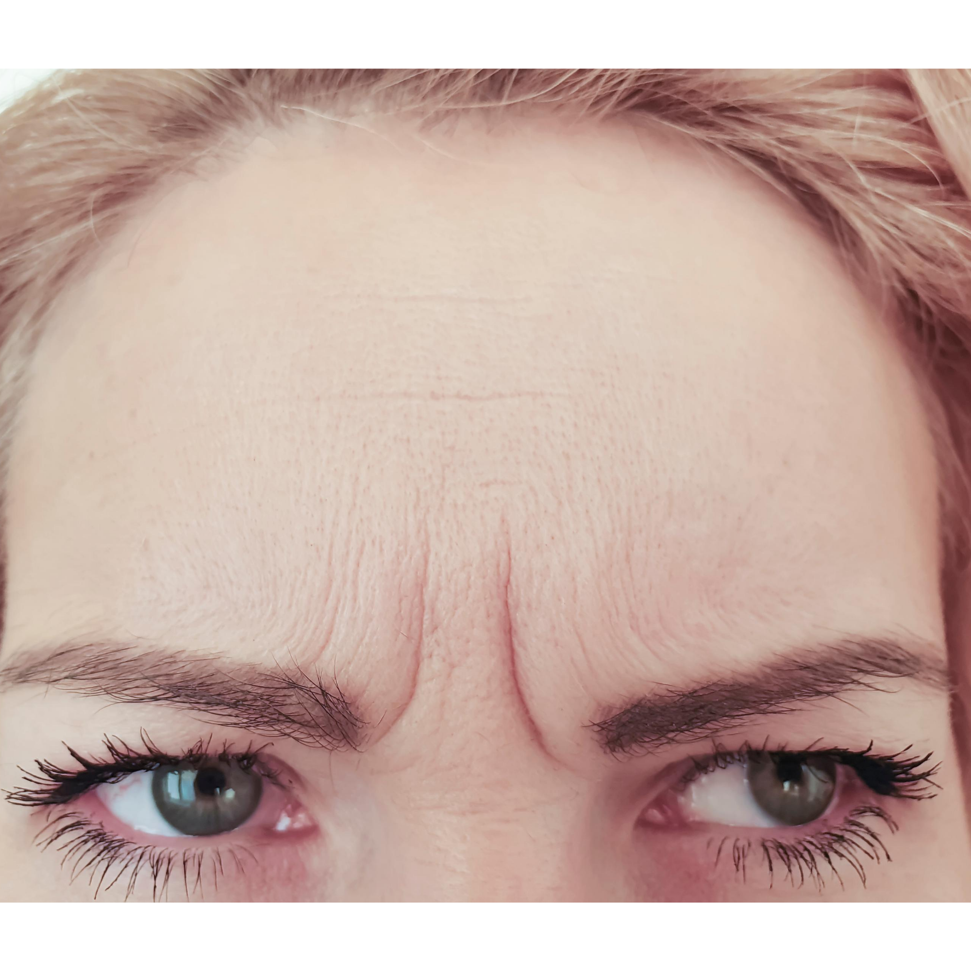 Fine lines and Wrinkles in Mature skin