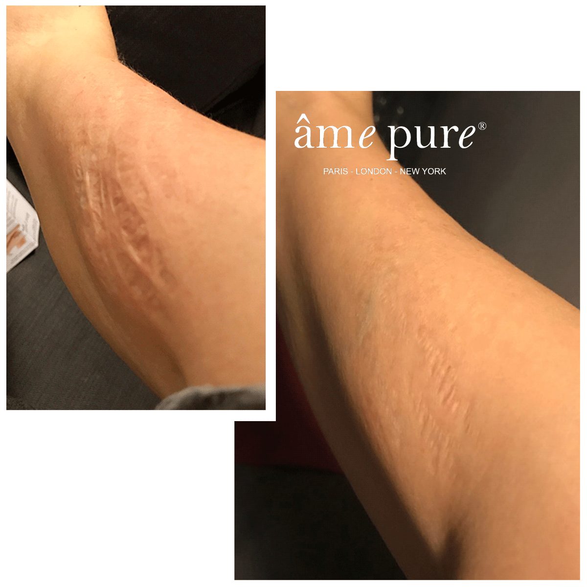 Annette Before After