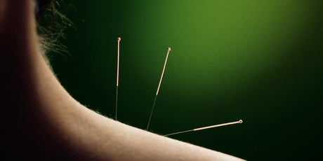 Level 2 Session: Comprehensive Acupuncture