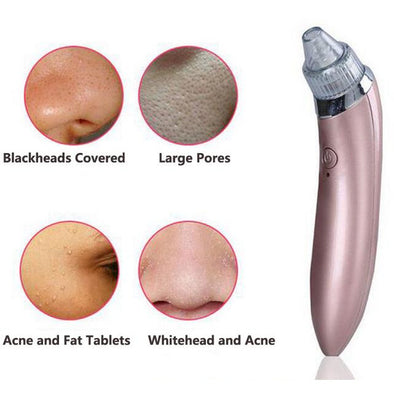 Ultimate Pore Vacuum