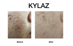 Kylaz Spot Off Treatment