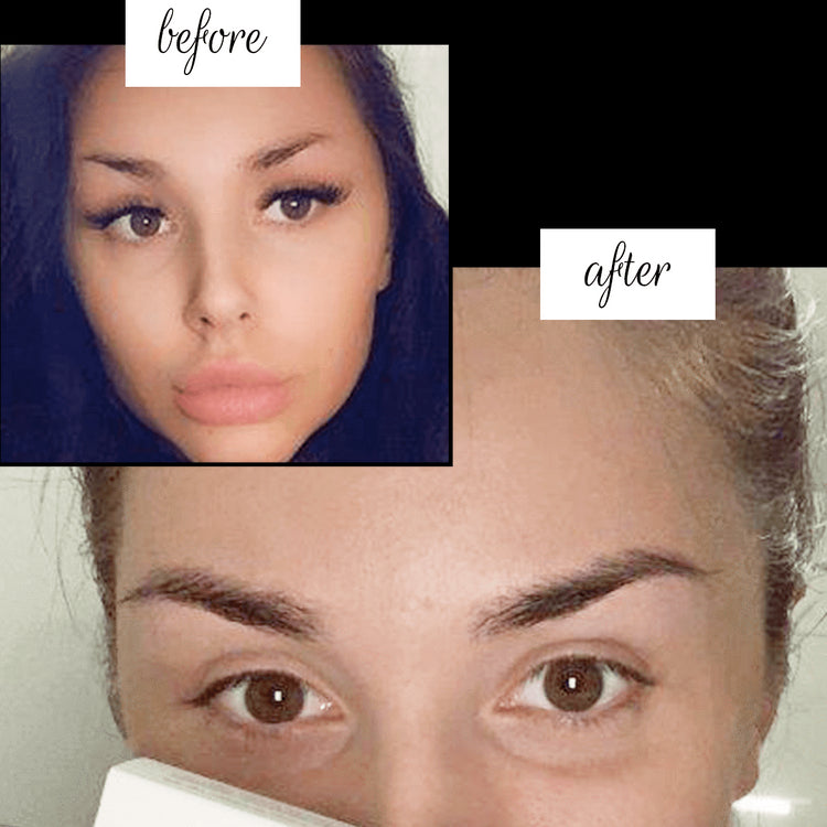 Brow Boost™ | Eyebrow Growth Serum