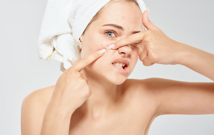 Causes of Adult Acne and Ways to Prevent or Get Rid of It.