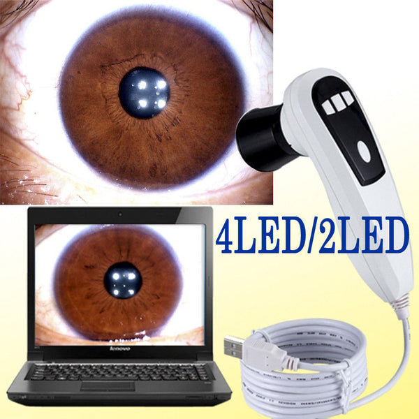 Free shipping!!! JYTOP 500 MP 4 LED /2 LED DigitaI Iriscope Iridology USB camera Iris analyzer EH660U