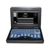 JYTOP CMS600P2VET Veterinary Ultrasound Scanner Laptop Machine,Horse/Cow Rectal and mirco convex 2 probes