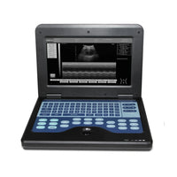 JYTOP Portable Laptop Machine Digital Ultrasound Scanner,6.5 MHz endo-vaginal probe CMS600P2