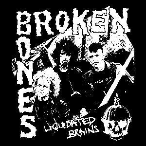 BROKEN BONES PIC sticker
